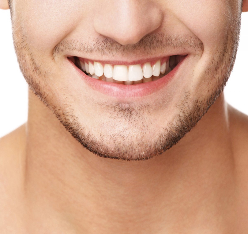 Faccette dentali Seregno