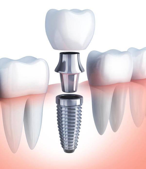 Impianto Dentale Seregno