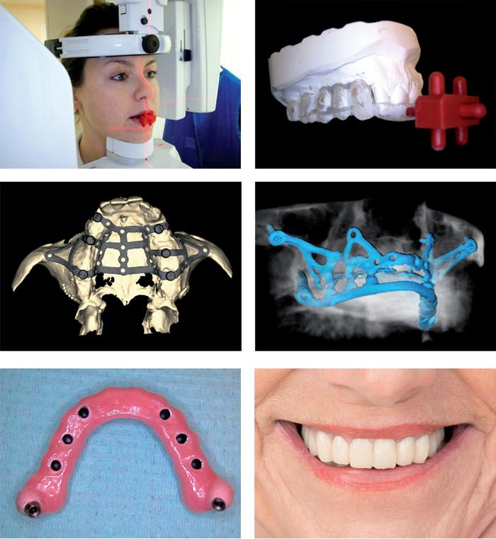 Implantologia a carico immediato Seregno