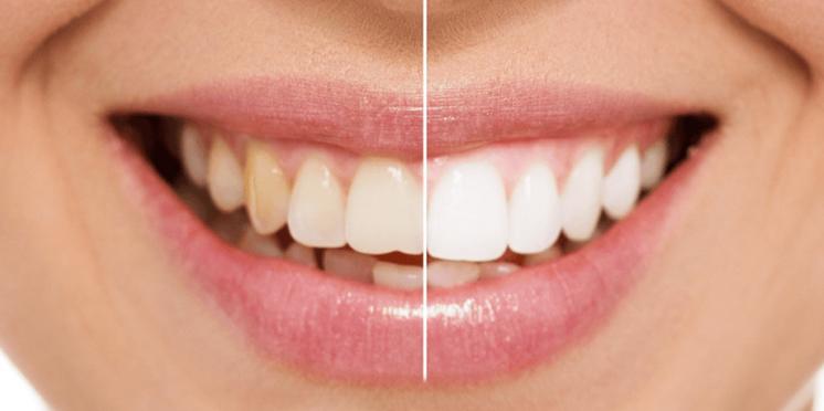 Sbiancamento denti Seregno